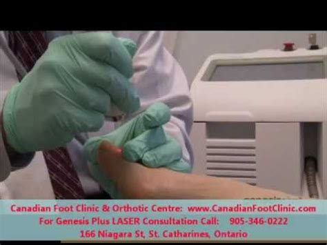 fungal nail laser treatment in louisiana picture 14