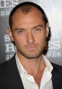 receding hairline picture 2