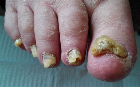 acrylic nail fungus symptoms picture 3