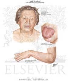 dry lips deficiency hormones picture 5