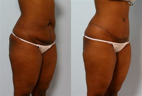 body hair removal picture 5