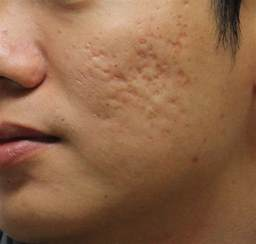 deep acne scars removal picture 5
