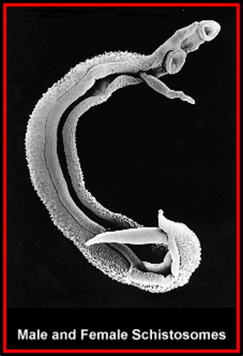intestinal parasites symptoms picture 3