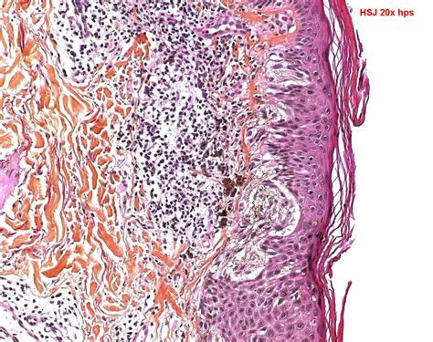 dysplastic cells skin picture 15
