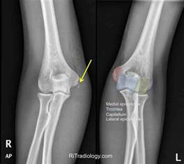 dislocation of a joint picture 9