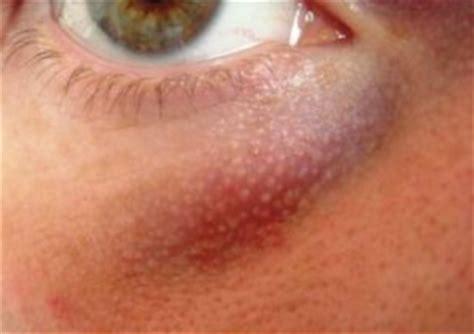 cholestrol deposits on skin picture 7
