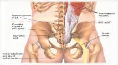 psis pain treatment picture 2