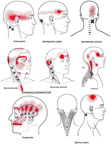 neck ache relief picture 9