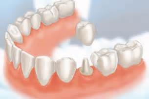 crowns for teeth picture 2
