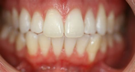 align of teeth after braces picture 2