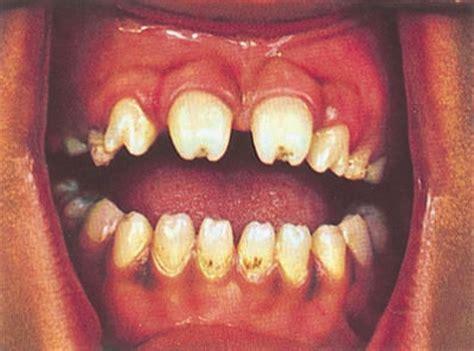 purple spots on lips that bleed picture 5