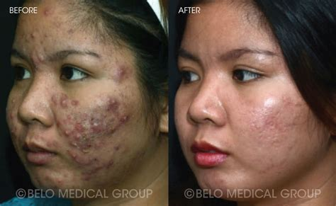 acne cure picture 6