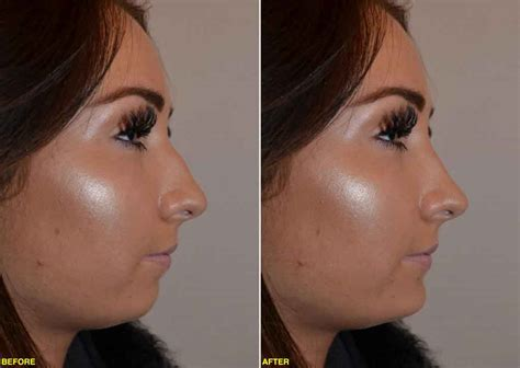 cost of male nose enhancement in the philippines picture 9