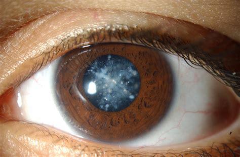 quantumin eye drops picture 13