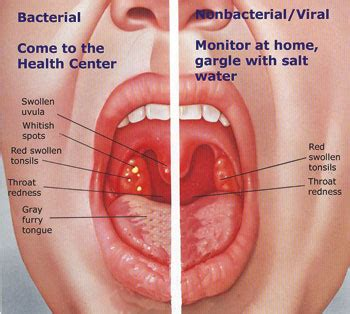 how to treat inflamed thyroid picture 3