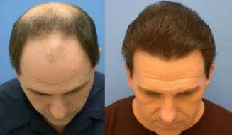 hair restore picture 1