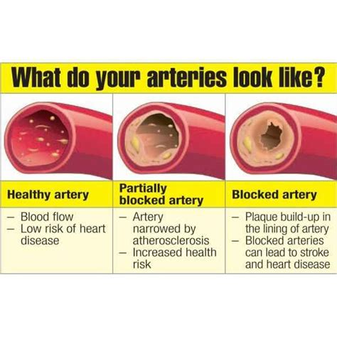 artery cleanse herbs picture 7