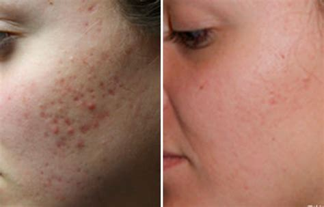 acne scarring on face what to do picture 2
