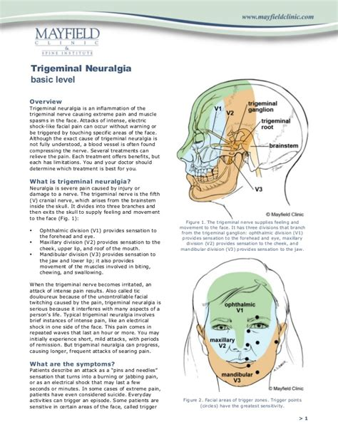 ciliary muscle and trigeminal pain picture 18
