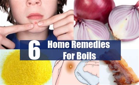 home remedies for boils picture 3