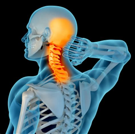 can sleep make back and neck pain go picture 13
