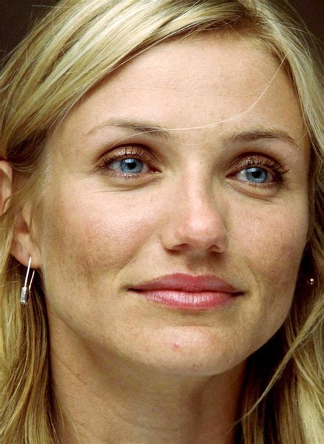 celebrities with acne pictures picture 9