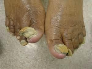 fungus toenails picture 5
