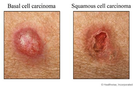 advanced squamous cell skin cancer picture 11