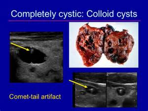 collodial silver ve thyroid nodule? picture 1