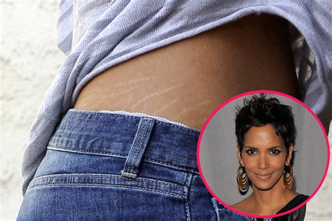celebs never have stretch marks picture 6