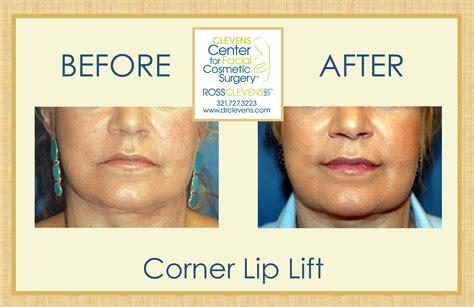 corner lip lift, uk picture 14