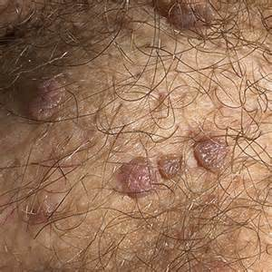genital wart symptoms picture 1