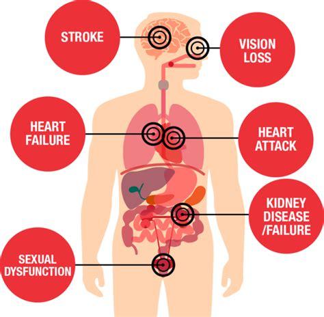 cholesterol raises blood pressure picture 17
