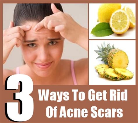 ways to get rid of acne picture 11