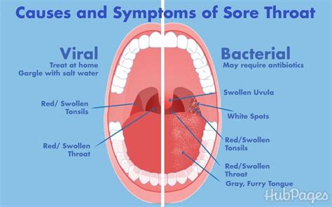 bacterial infection symptoms picture 15