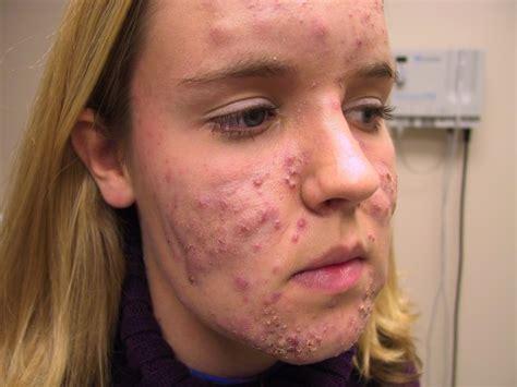 doxycycline acne picture 9