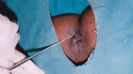 hemorrhoids treatment picture 7