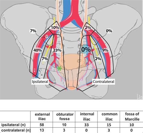 bladder and prostate picture 6