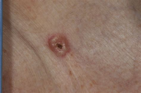 pictures of basil skin cancer picture 9
