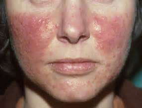 acne rosatia picture 1