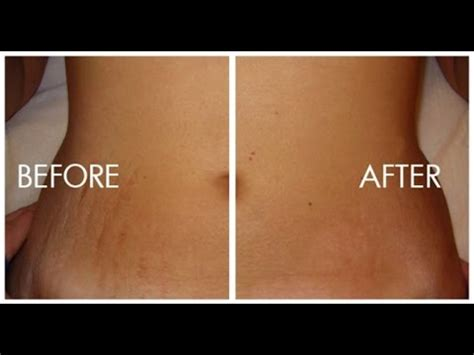 75 percent removal of stretch marks picture 9