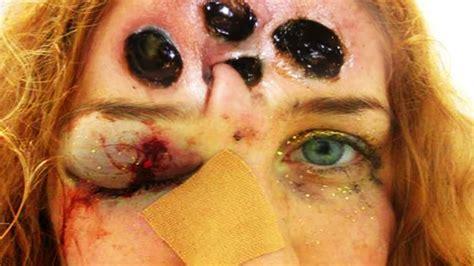 skin boils treatment picture 7
