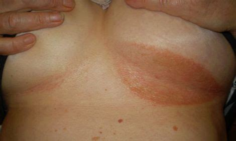 coumadin--any skin breaksts caused by this picture 6
