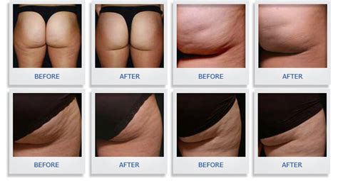 smoothshapes cellulite treatment where picture 2