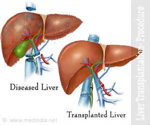 where is the most liver transplants done picture 17