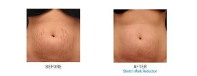 stretch marks cause prevention and cure picture 12