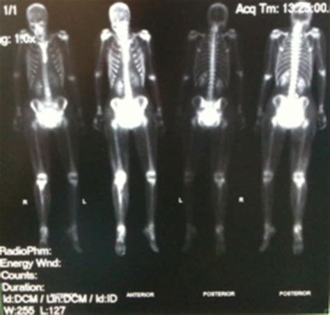 full bladder on a bone scan picture 10