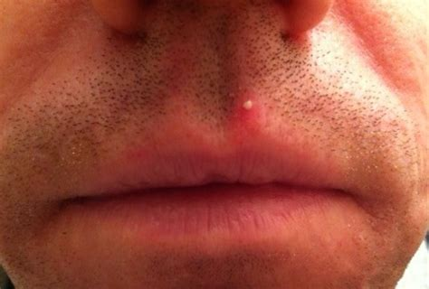 feed back on resolve herpes picture 17