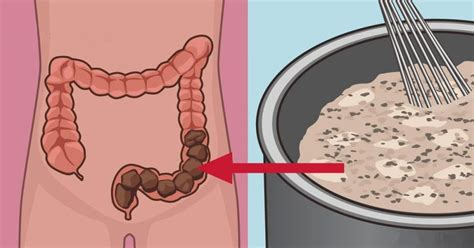 colon not emptying picture 9