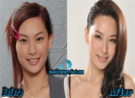 women aging plastic surgery hong kong picture 1